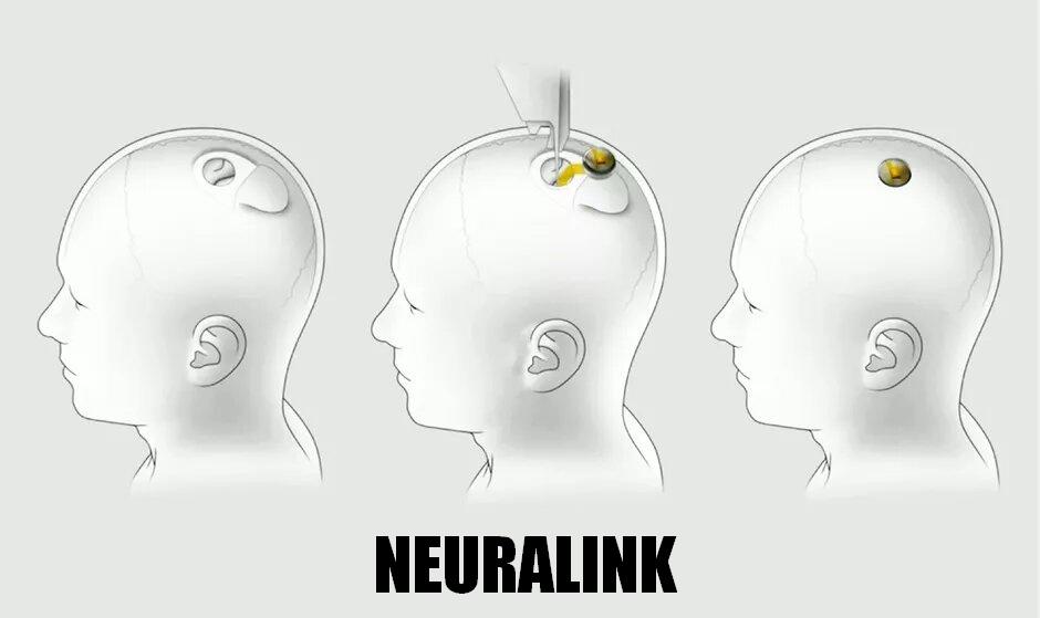 neuralink 2020